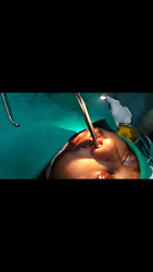 EXCLUSIVE: By Sanjay Pandey/Newslions A gunshot in the head is sure shot death sentence. But a 23-year-old Indian man who was shot in the face from close range by bike-borne robbers and lived five days with a 3-cm-long bullet lodged inside his face, has miraculously survived to tell his tale. Thanks to the talented surgeons pulled out the bullet through his nostrils at state-run JJ Hospital in Mumbai . Tanveer Ahmed Ansari, a small-time businessman from Gorakhpur in north Indian state of Uttar Pradesh, was shot in the forehead by the robbers as he refused to let go of his bag that had Rs 150,000 ($2,350). The bullet pierced through his forehead and got lodged in his left nose, miraculously missing his brains. According to the doctor, if the bullet had gone straight, he would died on the spot. The incident happened in the broad daylight in Gorakhpur town on December 7. Ansari's family took him to several doctors, but they won't take him in. Though he blinded in the left eye, Ansari never gave up on hope. He endured all the pain with the 3-cm-long bullet lodged hoping that doctors in Mumbai, around 1575km from the crime scene. Finally, the surgeons in Mumbai agreed to remove the bullet and they did so though nasal cavity of the patient. They made a small incision on the patient's face. Pictures and video of before and after the operation show Ansari serious wound and the procedure though which the doctors at JJ Hospital extracted the bullets. The X-ray scans released by the hospital shows the exact place where the bullet was stuck in his face. It was because of the positioning of the bullet, the doctors decided not to make any incision and extract the bullet through his nostrils. The procedure is called modified endoscopy where surgical instruments are attached to an inspection tube that inserted inside the body. Ansari has now recovered and has been released from the hospital. He was admitted to the hospital on December 12 and the same day the doctors decided t