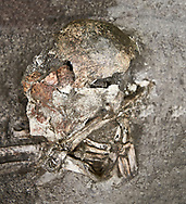 Plastered human skull and jawbone [11330]. Unique among excavated human remains from  Catalhoyuk, the shull and jawbone have been covered in soft palster from the forehead to the chin. This was then painted dark red. The nose was remodelled in plaster and several layers of plaster indicate that the process was repeated several times. Possibly an adult female.  Building 42 {F 1517], level V cirac 6300 BC . Catalhoyuk collection, Konya Archaeological Museum, Turkey .<br /> <br /> (updated 2021) Add photos of Catalhoyuk Antiquities using ADD TO CART button as royalty free download or prints or download from our ALAMY STOCK LIBRARY page at https://www.alamy.com/portfolio/paul-williams-funkystock - Scroll down and type -  Catalhoyuk  - into LOWER search box. (TIP - Refine search by adding a background colour as well).<br /> <br /> Visit our PREHISTORIC PLACES PHOTO COLLECTIONS for more  photos to download or buy as prints https://funkystock.photoshelter.com/gallery-collection/Prehistoric-Neolithic-Sites-Art-Artefacts-Pictures-Photos/C0000tfxw63zrUT4