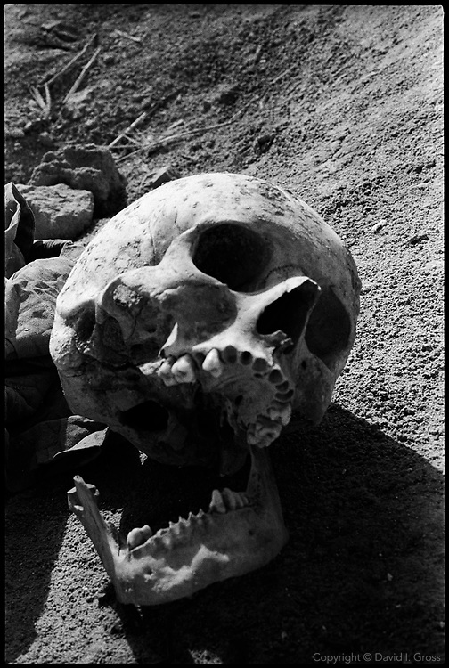 A skull at a mass grave near Hillah, Iraq, where one can see the remains of men, women and children. Some remains from the site were recovered by local people and left in piles.