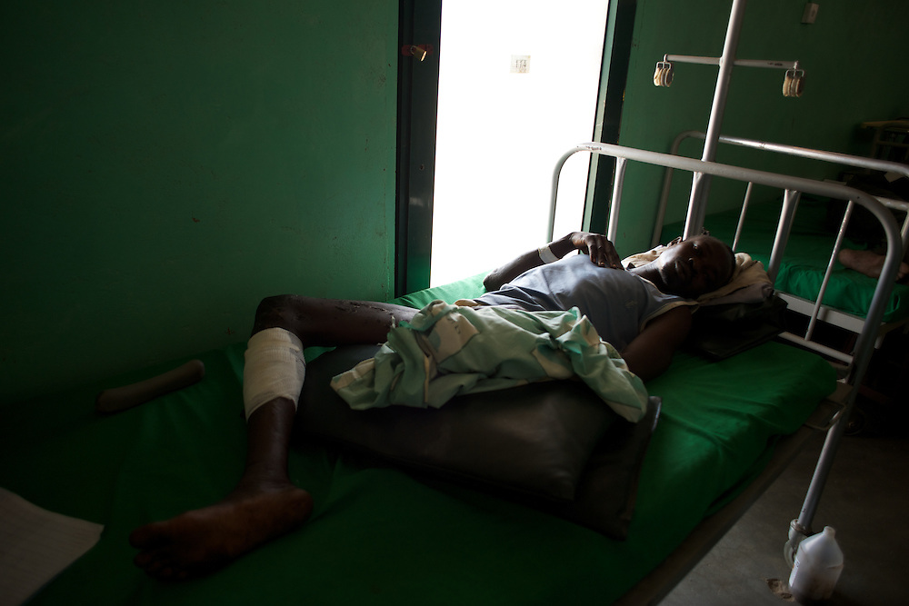 April 30, 2012 - Kauda, Nuba Mountains, South Kordofan, Sudan: Sudan People?s Liberation Movement (SPLA-N) rebel soldiers lie in a hospital in Gidel village, after having his leg amputated as a result of a landmine accident during combat in the rebel-held territory of the Nuba Mountains in South Kordofan...SPLA-North, a historical ally of SPLA, South Sudan's former rebel forces, has since last June being fighting the Sudanese Army Forces (SAF) over the right to autonomy and of the end of persecution of Nuba people by the regime of President Bashir. (Paulo Nunes dos Santos/Polaris)