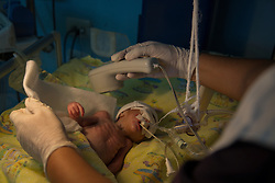 """A newborn child of a 14-year-old mother is treated in the ICU of Hospital San Benito. The baby boy was born premature and only weighed only 1.3 kilos. """"He is still very small and not physically ready yet. His chest muscles get tired very quickly so we cannot remove the tube until he gains some weight,"""" said pediatrician Dr. Jessica Gonzales. """"The mom being only 14 years... really they don't know what they are facing."""""""