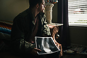 """BIRMINGHAM, AL – FEBRUARY 1, 2019:  An x-ray scan reveals the bullet fragment lodged in the foot of Warren """"Azad"""" Stoddard, 24. While fighting ISIS as a volunteer alongside Kurdish YPG forces, Stoddard was injured when an enemy bullet exploded through a wall near him. CREDIT: Bob Miller for The New York Times<br /> <br /> In the war against ISIS, American volunteers have joined the ranks of a Syrian militia, operating independently of the United States. Until recently, the predominantly Kurdish YPG forces had enjoyed air and ground support from the United States, but now that US is officially leaving, the remaining American volunteers face uncertain odds. <br /> <br /> Warren Stoddard, 24, comes from a long line of military veterans and active service members. So when a knee injury prevented him from enlisting in the Marines in 2016, he reached out to a YPG liaison on Facebook to declare his interest in volunteering. """"I always wanted to serve, to do something worthwhile and to take part in some historical event,"""" Stoddard said. """"And I cared about the Kurdish cause."""" Two years later, as the Turkish invasion placed added pressure on the predominantly Kurdish YPG, Stoddard finally received an invitation to join and purchased his own one way ticket. Six months later, while engaging an ISIS stronghold alongside his YPG unit, Stoddard caught bullet fragments in his his upper thigh and foot, where a small fragment is still lodged."""