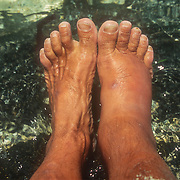 After a lot of walking through the forest streams I noticed a small uncomfortable lesion on the back of my ankle. It became very tender and inflamed when I wore my hiking boots and the collar rubbed up against it. Over the next few days it became more and more swollen, and then my entire foot swelled up to a grotesque size. With the massive swelling came excruciating pain; I couldn't stand up for more than ten minutes at a time without having to lay on my back and then count to ten while the pain slowly subsided. When I was standing up I could feel the pressure building up and then the searing pain charging down my blood vessels like an express train. Ironically, I had just been able to place my other foot that had been cut so badly, flat on the ground again without any discomfort ; now I would be hobbling on the other foot for the next few weeks. I was very disappointed that my exploratory forays into the forest had to be dramatically curtailed until I could walk properly again. I found a sturdy staff to help me stand upright for long as long as possible and it became a valued companion over the next two weeks or so. It was now a case of having to do things in short bursts until the pain became too unbearable. I couldn't have chosen a more isolated location to contract such a worrying condition. I couldn't believe the size of my foot; it was so heavy and full of fluid, and looked more like a rubber glove that had been filled to bursting point with water. The skin on the back of my ankle had turned purple and split open because of the extreme swelling. It was looking very serious and I was compelled to start the long arduous journey to the next sizeable town, Antalaha, at least 100 miles to the north. It was going to be a daunting journey anyway because of the combination of heavy surf and coral reefs on the outer coast, but now with this latest problem my resilience would be tested to the limit.