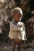 A child in a refugee camp near Merca, 100 km. south of Mogadishu, war-torn capital of Somalia. March 1992.