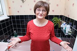 Woman; who has been undergoing Chemotherapy for breast cancer; wearing on a wig to cover up hair loss as a result of the treatment,