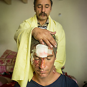 Matthieu Paley with his face cut off, after a bicycle accident, getting massage treatment.