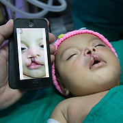 CAPTION: Comparing photographs of before and after the operation show just how much has changed for Allison! LOCATION: Hospital Escuela, Tegucigalpa, Honduras. INDIVIDUAL(S) PHOTOGRAPHED: Allison Juliet Lemus Martinez.