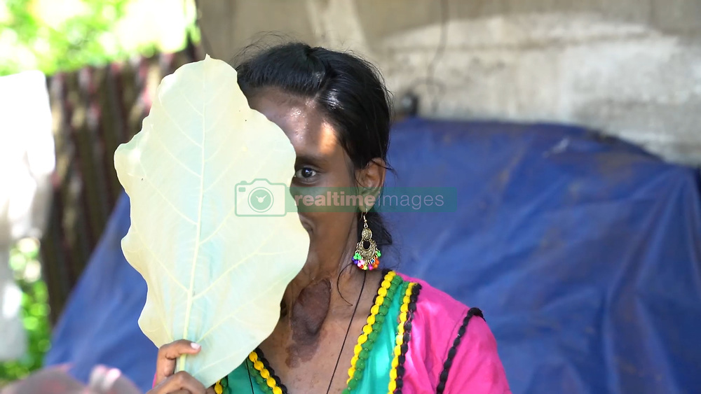 "EXCLUSIVE: Battling a rare health condition that has left half of her face disfigured, a 24-year-old Indian woman says she tries to live positively despite jeers by people. Sasikala K, from Chennai, the capital of India's southern Tamil Nadu state, suffers from plexiform neurofibromatosis, which has taken a toll on her face, affecting the right side. However, she admits her confidence has taken a hit of late. Sasikala, who prefers to live boldly and does not cover her face, likes dressing up and wearing make-up, much like girls her age, though she finds it difficult to execute them owing to her complications. She was only six-months-old when her parents noticed a part of her face swelling. However, they waited for another one and a half years to get medical help. ""I have always been very bold, however, with age, the condition progressed and no one has come for help,"" she says, adding, ""I am slowly losing my confidence."" According to medical experts, her condition affects the face and craniofacial region of the body. It can also affect the neck and other parts of the body, depending upon the host. The family had not considered the deformity to be a big issue until Sasikala turned six and the face started to swell at an unusual rate. Now, almost 18 years later, she finds it difficult to execute daily chores like eating and brushing. The 24-year old is an employee at an embroidery unit run by a trust. Sasikala took it up as a means to support her family after completing her diploma in nursing and unable to land a job in the hospitality sector. Kumar, 54, Sasikala's father, says his daughter has been under the knife four times, but it has only gotten worse. ""She was six when doctors operated upon her for the first time,"" Kumar says. ""The result was satisfying and she looked normal,"" he added. However, the joy was short-lived, as the tumours grew back again. Kumar says upon approaching the doctors again, he was told that it could be controlled but wou"