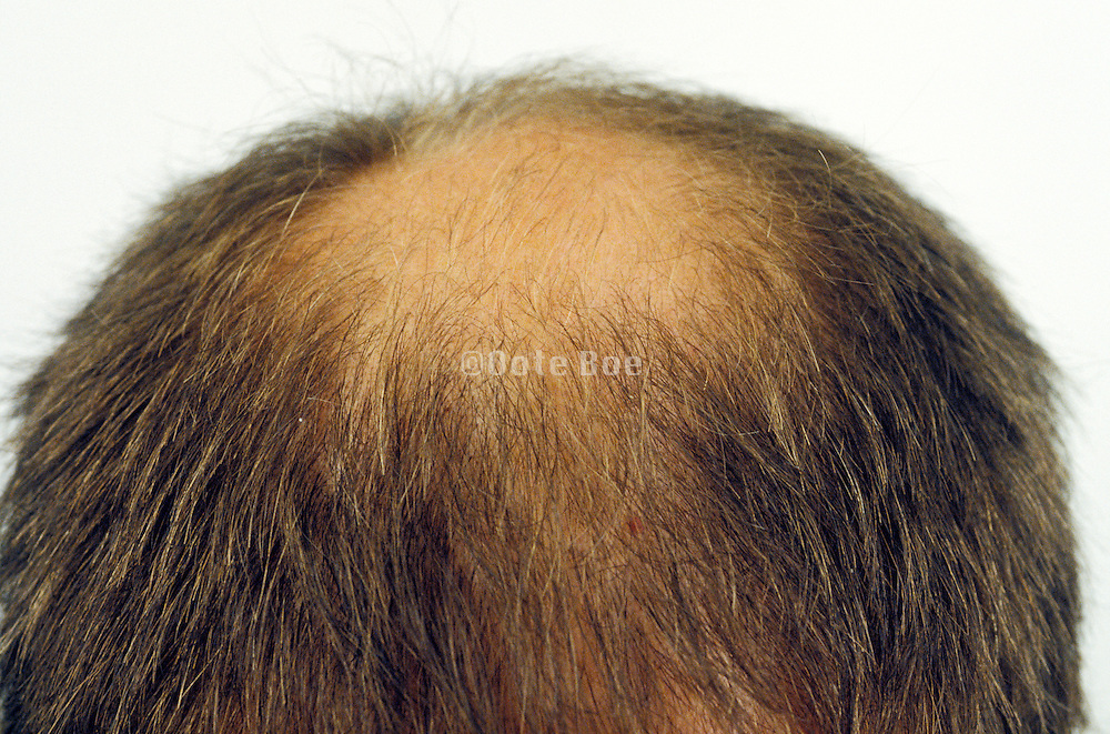 overhead view of the back of a balding man