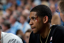 CHAPEL HILL, NC - FEBRUARY 15: C.J. Harris #11 of the Wake Forest Demon Deacons bleeds out above his eye after hitting the court while playing the North Carolina Tar Heels at the Dean E. Smith Center in Chapel Hill, North Carolina. North Carolina won 64-78. (Photo by Peyton Williams/UNC/Getty Images) *** Local Caption *** C.J. Harris