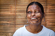 """STOP ACID ATTACKS<br /><br />They got attacked with acid when they were so young. By people who tried to disfigure them, to destroy their identity, who thought that they could do anything to women and that they could lead them to darkness and silence. <br />Today, here they are. They started campaigning in Delhi in 2013 to help and rehabilitate acid attacks survivors. The campaign is called """"STOP ACID ATTACKS"""". Their action spread out all over India. They go to meet survivors in their families and help them come out, intervene when the police do not take up a complaint and follow up on the medical treatment and the ensuing legal procedure. They also report the news cases to the authorities and the medias. The girls don't want to hide. They design clothes, they opened a café-restaurant in Agra, they do painting, they want to smile, they have different life projects. They also interact with other minorities as rape victims, LGBT communities, old people abandoned by their families, sharing their strength and experience. They refuse to be called """"victims"""" but prefer the term """"fighters"""".   <br /><br />Photo shows: Nitu, 24, lives in Agra and works at Sheroes Hangout. She was attacked with acid by her father when she was very young, as her mother gave him daughters, though he wanted to have sons. <br />©Pascal Mannaerts/Exclusivepix Media"""