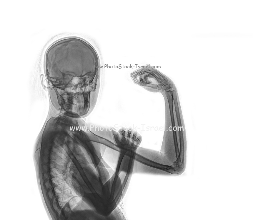 Woman's Power - We can do it - x-ray of a woman flexing her arm muscles