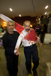 © under license to London News Pictures.  18/02/2011. Protesters are brought into Salmnya Heath Complex in Manama, Bahrain to be treated after being shot by the police. Photo credit should read Michael Graae/London News Pictures