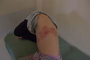 """Una niña muestra su piel manchada dentro de la sala de emergencias de un centro médico en la ciudad de Quintero.<br /> <br /> Chile,  5 de septiembre de 2018. <br /> <br /> """"Mi hija estaba intoxicada el jueves 23 de agosto, estaba con oxígeno, fiebre y entumecimiento de las piernas, el sábado comenzó con 3 granos en su cuerpo, el lunes la niña había estallado""""<br /> <br /> """"La llevé a un dermatólogo, él me dijo que, como resultado de la intoxicación, los químicos la encontraron débil y eso hizo que la niña explotara de esa manera. Ahora los médicos del hospital me dijeron que era un herpes """".<br /> <br /> """"Mi hija llora de dolor, no es bueno que sigan jugando con la salud de los niños, no tienen que pagar las consecuencias de las empresas"""""""