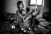 Bharti Gupta, 32, a '1984 Gas Survivor', is looking at the correct way to fit the lower legs' supports used daily by her disabled son Unnati, 6, a boy affected by a severe neurological disorder, before leaving their home in Pashpa Nagar, Bhopal, Madhya Pradesh, central India, in order to attend Chingari Trust Rehabilitation Centre, located near the abandoned Union Carbide (now DOW Chemical) industrial complex.