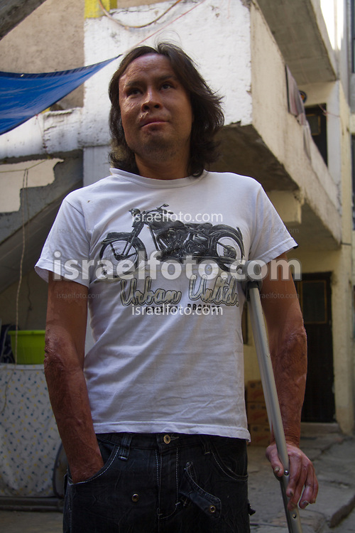 Noé Torres sufrió un accidente mientras trabajaba con pólvora. Sufrió quemaduras graves en gran parte de su cuerpo. Cuando le es posible, hace trabajos de pirotecnia.