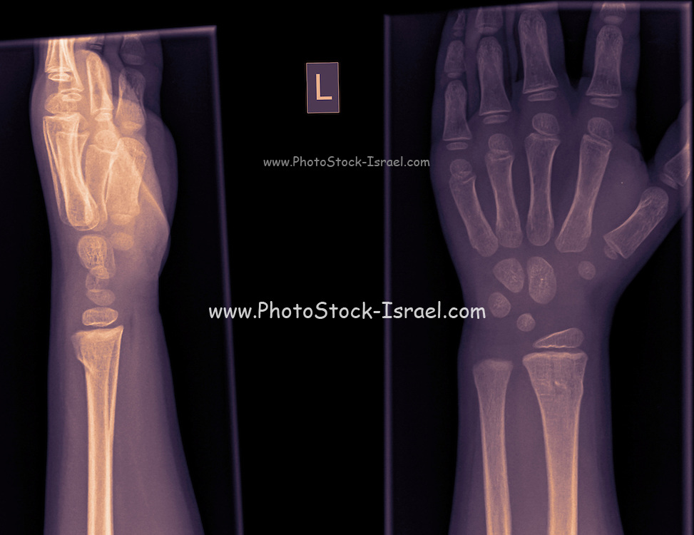 wrist and hand x-ray of a 4 year old infant male with a Distal radius fracture