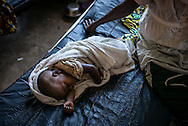 DRC / Burundi Refugees / A child lies on his bed in a hospital in DRC's South<br /> Kivu Province where he is being treated for malaria. More than 9000 Burundians refugees have crossed into the DRC over the past few weeks. The new<br /> arrivals are being hosted by local families, but the growing numbers are straining<br /> available support. UNHCR is helping some 700 vulnerable refugees at a transit centre<br /> at Kavimvira and in another centre at Sange. Work is ongoing to identify a site<br /> where all the refugees can be moved, and from where they can have access to<br /> facilities such as schools, health centers and with proper security. / UNHCR / F.Scoppa / May 2015