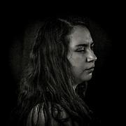 Natalia Aravena (25) Enfermera. <br /> Natalia fue impactada por una lacrimógena el día 28 de Octubre del 2019 en cercanías del palacio La Moneda en Santiago. Su diagnostico fue de Estallido ocular con perdida total del ojo derecho. Santiago, Chile. 16 de diciembre del 2019