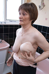 Woman who has had a mastectomy; the removal of a breast in response to breast cancer; holding up a silicone prosthesis whilst getting dressed and putting on a postmastectomy bra in her bathroom,