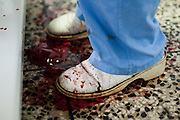 Blood stains the shoes of Dr. Kamson Kamara as he performs a c-section operation at the Princess Christian Maternity Hospital in Freetown, Sierra Leone on Monday April 26, 2010.