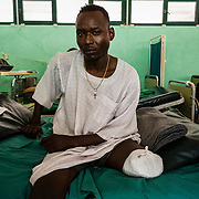 A soldier from the SPLA-N rebel group had to be amputated after stepping on mine near a frontline.  He is hospitalized at Gidel hospital, the only place in South Kordofan where he can get treatment.  Gidel, South Kordofan, Sudan - November 2012