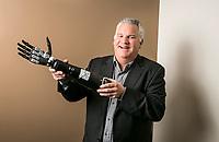 David Hankin, CEO of Alfred Mann Foundation, holds an IMES bionic hand in Santa Clarita, CA. March 26, 2014. Photo by David Sprague