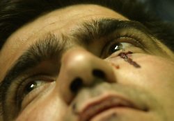 Iraqi Police Officer Gasan Samir, 32, is seen waiting for further treatment at Al Yarmouk hospital in Baghdad, Iraq, Feb. 11, 2004. A suicide attacker detonated a car packed with explosives in a crowd of hundreds of Iraqis waiting outside a Baghdad army recruiting center Wednesday, killing up to 46 people in the second bombing in two days targeting Iraqis working with the U.S.-led coalition. The attack backed threats that insurgents would step up violence to disrupt the planned June 30 handover of power to the Iraqis.