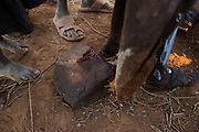 A Pokot girl stands on her feet after having bled on the rock she was squatting after having been circumcised, about 80 kilometres from the town of Marigat in Baringo County, Kenya, October 17, 2014. The ceremony starts the evening before the girls get circumcised and involves women and elders of the community gathering together, singing and dancing through out the night in encouragement to the girls who together wait inside a hut for first light. The traditional practice of circumcision within the Pokot is a right of passage that marks the transition to womanhood and a requirement to marriage within the community.