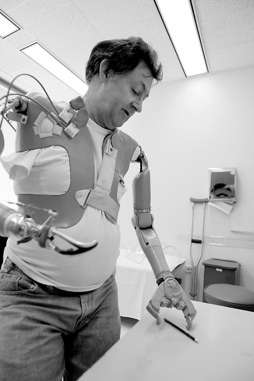 Double amputee Jesse Sullivan uses his motorized, computerized artificial arm to pick up a pencil at Rehabilitation Institute of Chicago.  Sullivan prefers to use a type of hand called a Greiffer (or gripper).  Sullivan, of Dayton, Tennessee, was the first patient to undergo the surgery to enhance use of an artificial arm.  Sullivan lost both arms on the job as a lineman for a Tennessee power company who accidentally touched a high tension wire carrying 7400 volts.  The accident cost Sullivan both of his arms up to the shoulders. The nerves that once controlled Sullivan's left arm were surgically implanted into his chest muscles since he had no arm muscles at all.  On his left side he was outfitted with a Boston Digital Arm and the contacts in the socket of the prosthesis were positioned where the prosthetist finds the strongest EMG signal.  Sullivan currently has control over three different mechanical arm and hand functions and is being tested for other sites for contacts as the nerves continue to innervate the muscles.  The arm feels so natural to him that he once yanked off his mechanical hand trying to start the lawnmower.  On his right side Sullivan uses an older body-powered mechanical arm with a split hook hand.