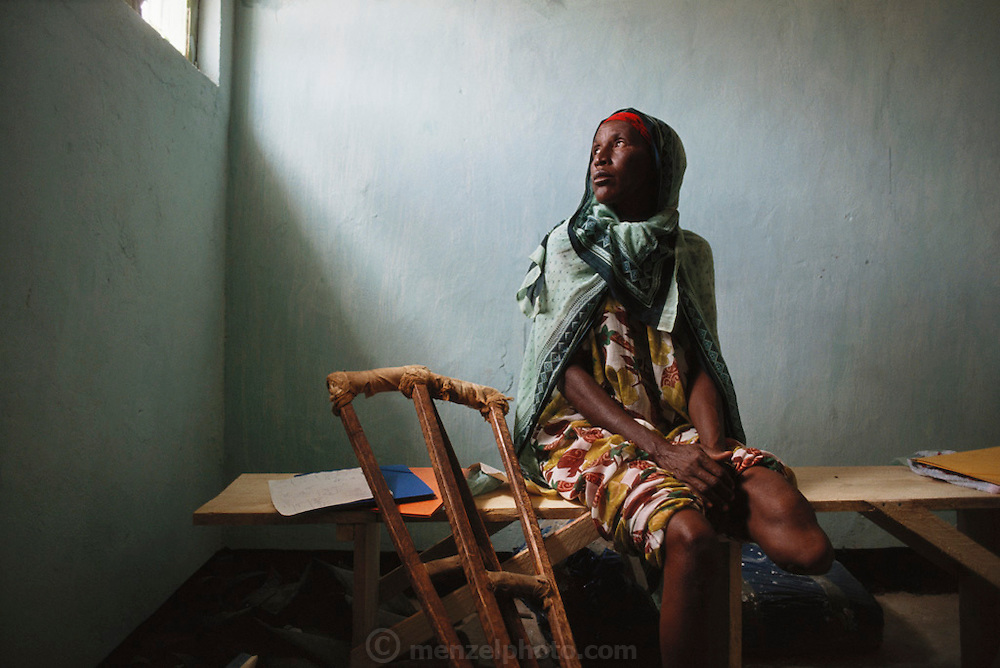 A 50 year old Somalian woman waiting to be fitted for a prosthesis in Hargeisa, Somaliland after losing her leg to a landmine while herding her cattle. Somaliland is the breakaway republic in northern Somalia that declared independence in 1991 after 50,000 died in civil war. March 1992.