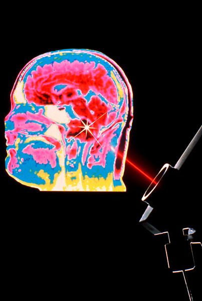 Stock photo of medical laser technology.