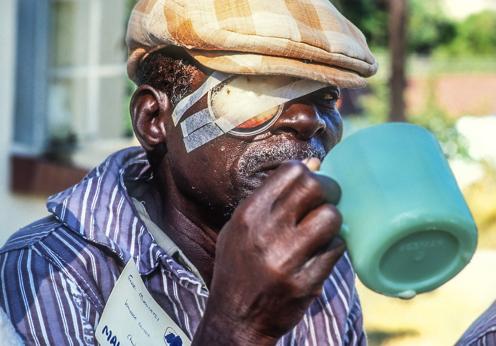 Eye Surgery, Zimbabwe, Southern Africa.<br /> <br /> Raleigh International partnered Surgical Eye Expeditions(SEE) International on a number of expeditions to assist in the provision of medical, surgical, and educational services with the primary objective of restoring sight to blind individuals.