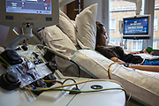 A young female hospital patient lies bed while attached to a medical transfusion device in the London clinic, London, United Kingdom. Her stem cells are being collected through the cell separator equipment which she is donating for an allogenic stem cell transplant for someone with severe blood cancer (leukemia, lymphoma, myeloma).  She is the youngest non-related donor in the UK.
