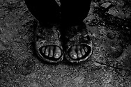 Young Iraqi boy's feet, Iraq, 01 Feb., 2007. .
