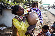 Shocking images show plight of cancer-stricken child, 3, with kidney tumour the size of a BEACH BALL<br /> <br /> Dramatic new photographs have illustrated the plight of children suffering from a common form of pediatric cancer.<br /> The three snapshots, taken in India's Chitrakoot Dham Karwi, this week, offer graphic insight into the pain of Wilms Tumours - a rare form of growths that target the kidneys. <br /> Identified only as Sohana, the infant is shown on a busy roadside - stomach protruding - while being held by a relative.<br /> <br /> The child's painful-looking mass is so swollen that the youngster appears unable to wear her clothes properly, with her t-shirt barely covering the tumour's tip and her elasticated trousers gathered underneath it.<br /> A second image shows white gauze attached to her side, which suggests she has either undergone pre-surgery testing or has suffered a surface recent wound.<br /> <br /> Shockingly, Wilms tumours are the most common cancers in children, accounting for 9 out of 10 cases, but - according to cancer charity Macmillan - the causes of it are largely unknown.<br /> Very rarely, people who develop Wilms' tumour have other specific conditions which are present at birth, such as a lack of an iris in the eye (aniridia), abnormalities of the genitals or a condition where one side of the body is slightly larger than the other (hemihypertrophy).<br /> <br /> <br /> There is also evidence that suggests a slight genetic link, although only 1 per cent of patients have a relative with the condition.<br /> Fortunately, all children are expected to undergo a biopsy to confirm the diagnosis, before undergoing surgery.<br /> Apart from very young children (under six months), most patients will also receive chemotherapy before having a bigger operation to remove the entire tumour.<br /> The operation usually involves removing the whole of the affected kidney.