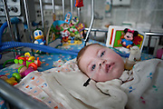 A child in the intensive care unit of the Childrens Regional Hospital,Gomel in Southern Belarus.Chernobyl's human costs are widespread affecting about seven million people.A generation later children are being born with birth defects ,heart problems and thyroid cancer.The crippled economy of Belarus has led to poverty, social problems and domestic abuse..Photograph by Eamon Ward