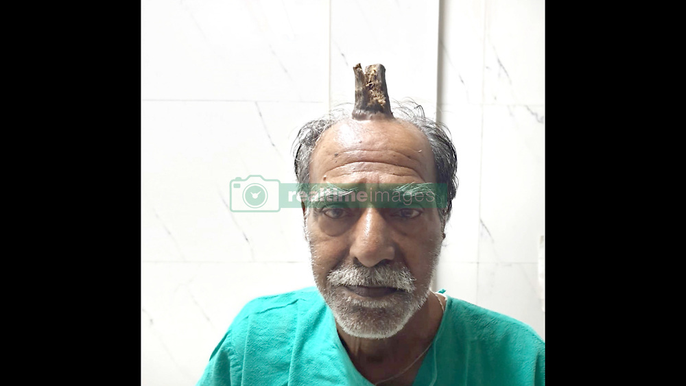 """A 75-year-old man suffering from a rare disease has grown a Hellboy-like horn on his head. Shyamal Lal Yadav, hailing from Sagar district of Madhya Pradesh in central India, suffered an injury on his head five years ago. Yadav claims that a horn-like structure started developing in the middle of his head after that. Yadav saw several doctors, but 'all of them looked clueless'. He finally got the horn sliced with the help of a barber. """"I thought to myself finally I had got good riddance from the devil's horn. But my happiness was short-lived,"""" said Yadav. As feared, the horn started to grow back on his head and he was completely clueless about his next course of action Fortunately, the growth did not cause any physical discomfort or snowball into a medical issue. But, it had certainly made him a laughing stock. He was embarrassed to roam around in public with the unnatural growth on his head. """"I kept doing the rounds of hospitals, but nothing happened. Then I asked my barber to cut the horn with the shaving blade. He did manage to cut it off, but the horn grew back in some time at the same spot,"""" said the 'real-life Hellboy'. According to Yadav, he travelled to Bhopal (around 170km from Sagar) and Nagpur (around 388km from his home) to consult senior experts, however, had to come back as he could not afford the cost of the operation. The medical fraternity was in a tizzy as they hadn't witnessed anything like that. His quest finally ended at a private clinic run by Dr. Vishal Gajbhiye in his home town Sagar. Dr. Gajbhiye said,"""" """"The four-inch horn was solid and had sizable thickness."""" The physician carried out a CT scan to ensure that the horn wasn't deep enough to require the intervention of a neurosurgeon. The physician went ahead with the head surgery to remove the horn. After the horn was removed, the surgeons used the skin of Yadav's forehead to fill up the gap through plastic surgery. Dr. Gajbhiye calls it a rare case and claimed t"""
