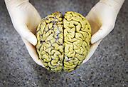 Nederland, Nijmegen, 26-1-2019 Menselijke hersenen. Foto: Flip Franssen