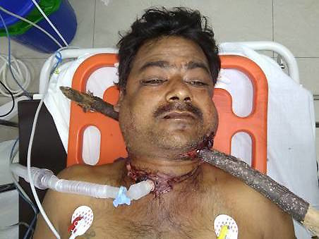 """By Sanjay Pandey in India for MailOnline This 40-year-old gritty man not only survived 12 hours with a 5ft long and tree branch lodged in his neck and head, but also managed to travel 60km with the (wood) staff to a private hospital in Bangalore, India. Farm labourer Nanjesha HN, who hails from Amruthur in Tumkur district of south Indian state of Karnataka, had met with a road accident and got himself impaled on the branch (3cm in diameter) on December 22. The staff pierced through his neck - entering from the left of the neck and exiting on the right side behind the ear. A team of doctors from Sparsh Hospital, Yeshwantpur, successfully removed the branch and saved his life. Four months on, the patient has recovered well and is able to narrate his own story. """"On December 22, I was riding a two-wheeler from my house and was heading toward Kunigal to attend the funeral of a relative. I veered to my left to avoid an oncoming truck. But I lost my balance and impaled myself on a dried up branch lying on the ground,"""" said Nanjesha, still struggling to speak clearly. """"It pierced through my neck and emerged on the other side from behind my ear. I was bleeding profusely and had to keep my mouth wide open, gasping for breath. At that time, I didn't know whether I would live to see the next morning. But I never gave up and kept fighting for survival,"""" he added. Luckily for Nanjesha, a passersby spotted him and called an ambulance. Though the vehicle reached in 20 minutes and he was taken to the nearby Kunigal government hospital, the doctors refused to take his case. """"The doctor didn't even touch me. I was still on the ambulance, so they decided to take me to another nearby hospital in Belluru Cross,"""" Nanjesha recalled. From there, he was taken to a private medical college where doctors administered first aid. Since the patient's airways were obstructed, the doctors had to do a tracheostomy near his throat to provide an air passage to help him breathe. """"I w"""