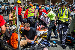 "On Saturday, August 12, 2017, a veritable who's who of white supremacist groups clashed with hundreds of counter-protesters during the ""Unite The Right"" rally in Charlottesville, Va. Dozens were injured in skirmishes and many others after a white nationalist plowed his sports car into a throng of protesters.  One counter-protester died after being struck by the vehicle. The driver of the car was caught fleeing the scene and the Governor of Virginia issued a state of emergency. (Photos by Michael Nigro)"