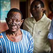 """""""Lion Face"""" is one of the many effects of Leprosy. This is the stage when the disease starts eating away at a person's face, morphing their features until they look like a lion."""