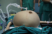 GUANGZHOU, CHINA - (CHINA OUT) <br /> <br /> 15kg Intraperitoneal Tumor Removed From 11-Year-Old Girl<br /> <br />  Han Bingbing, an 11-year-old girl from Heilongjiang, receives her last body checkup and disinfection before a surgery that will remove her 15kg intraperitoneal tumor,  Han Bingbing, an 11-year-old girl from Heilongjiang, successfully received an 8-hour surgery operation to remove an intraperitoneal tumor. After 4 years, the tumor had reached a weight of 15kg and a size bigger than two footballs. As of June 18th, the tumor filled 5/6 of Bingbing's abdomen and caused her internal organs to gradually collapse. The Xukecheng Health Care Corporation raised a donation of 120 thousand RMB (19.3 thousand USD) that went towards Bingbing's surgery.<br /> ©Exclusivepix