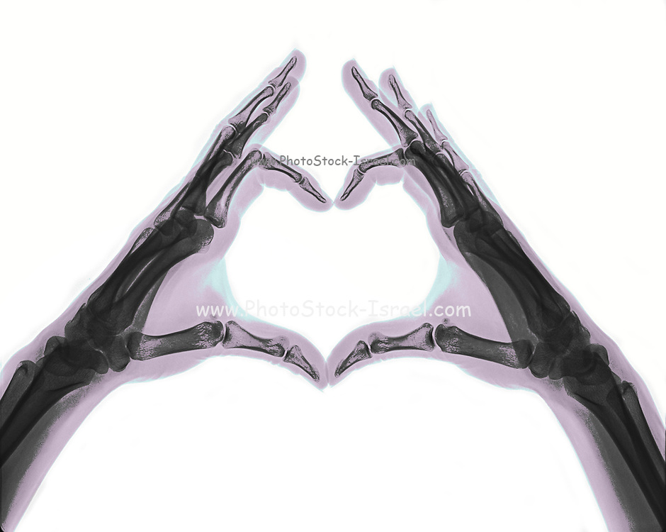 X-ray of hands forming a heart shape