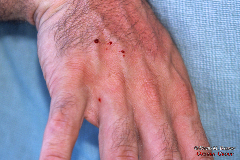 Jeff Seminoff's Hand After Snake Bite