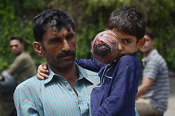 June 1, 2017 - Lahore, Punjab, Pakistan - Pakistani Muhammad Mansha, resident of a village Ghaus Nagar district Pak Pattan Punjab's provincial along with 7 year old son Ali Hassan, who is suffering from eye cancer, appeals for the treatment of his son in Lahore. (Credit Image: © Rana Sajid Hussain/Pacific Press via ZUMA Wire)