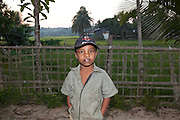 Bangladesh cleft lip