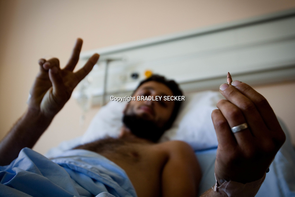 An injured FSA soldier receiving medical treatment in Antakya, Turkey shows the bullet that was removed from his torso. Antakya, Turkey12/06/2012