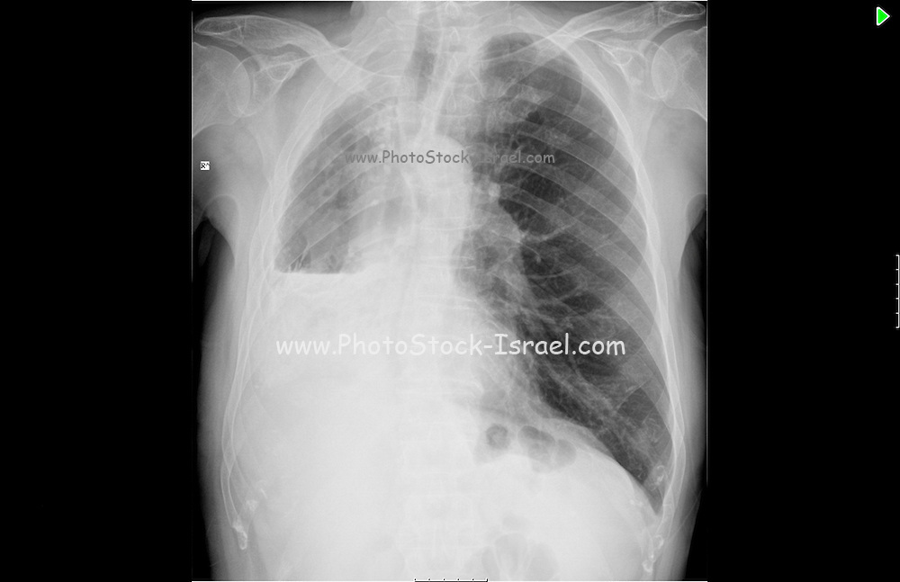 80 Year old male patient. Chest X-ray patient suffers from Pleurisy without effusion or tuberculosis