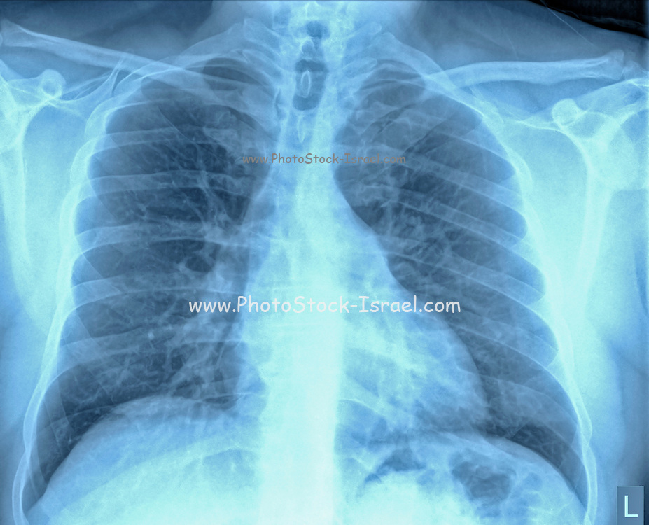Normal Healthy Chest x-ray of a 46 year old male. front view